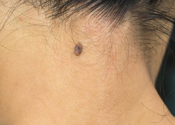 Black-mole-on-the-back-neck-skin-of-Asian-woman-with-skin-cancer