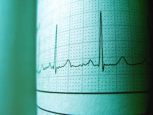 heart attack ECG thailand