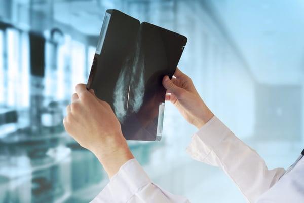 mammogram bangkok thailand